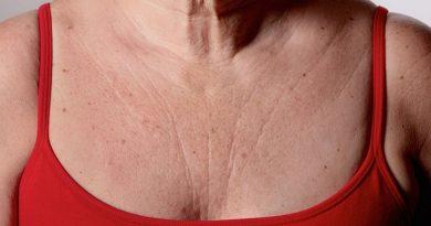 Ši super kaukė greitai pašalins raukšles nuo krūtinės ir kaklo – jūs jausitės žymiai jaunesnė!