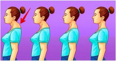 Druskų kuprelės ant kaklo pašalinimo paslaptis: 4 naudingi pratimai, kurių jūs seniai ieškojote