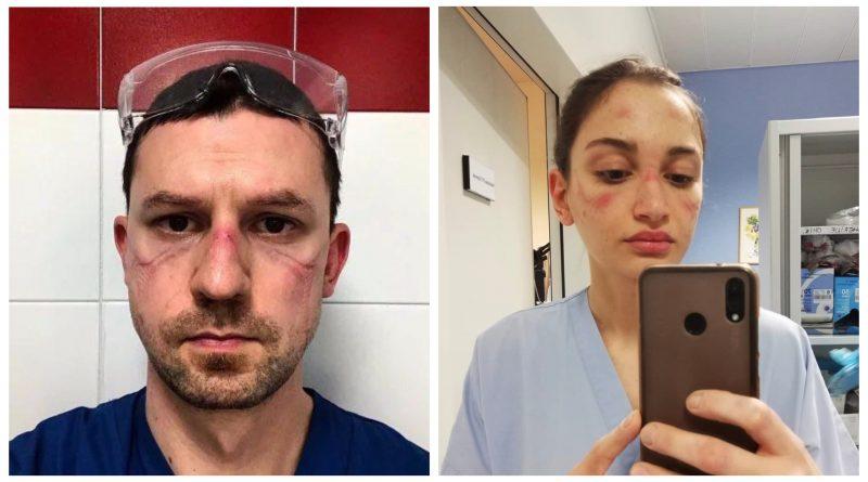 Gydytojai parodė, kaip atrodo jų veidai po parą trukusio darbo koronaviruso pandemijos sąlygomis